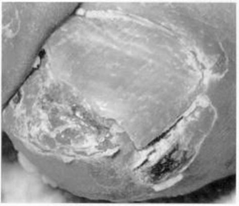 Vulvovaginitis Reactive arthritis